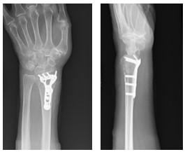 骨折 端 遠 リハビリ 位 橈骨